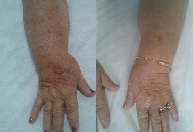 melanose-solar-pode-desaparecer-com-tratamento-de-pele